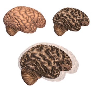cerebro sin alzheimer
